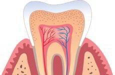 Zdravljenje parodontoze